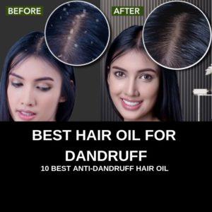 BEST HAIR OIL FOR DANDRUFF (BEST ANTI DANDRUFF HAIR OIL)