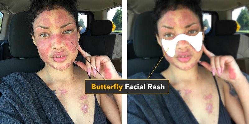 lupus butterfly facial rash