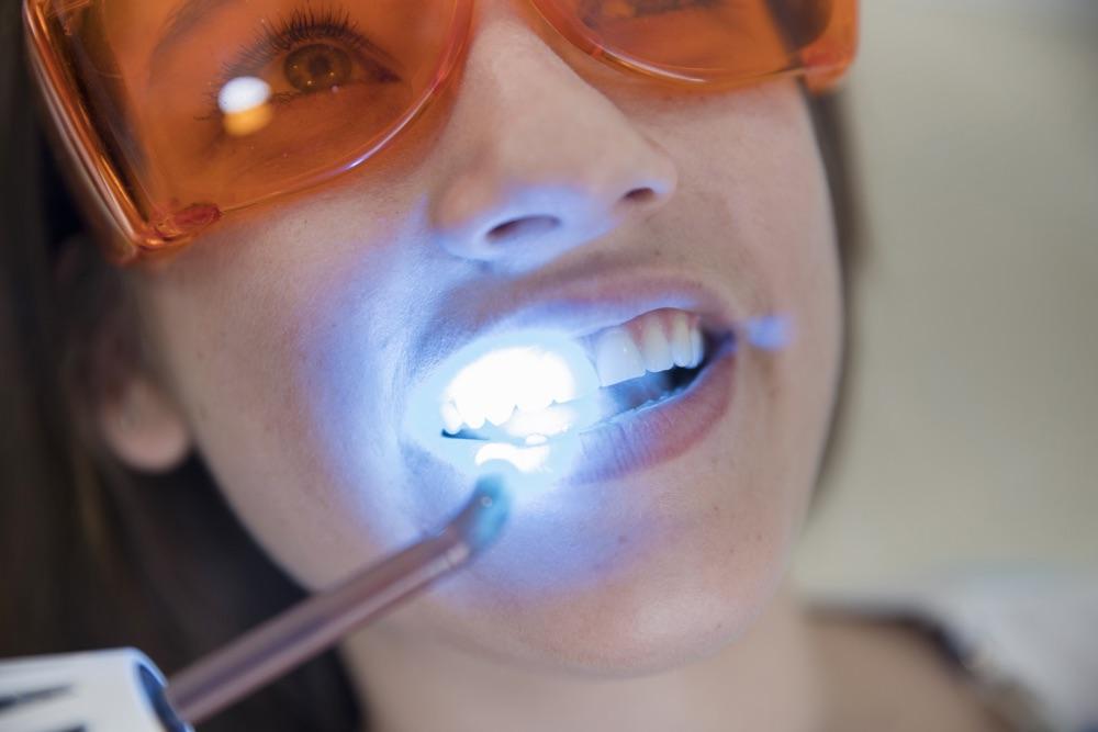 best laser dental clinic chennai tamil nadu india