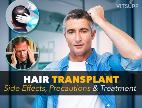 artificial hair transplant side effects long term